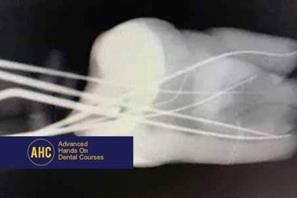 Medium main image advanced endodontics hands on course   november 2021