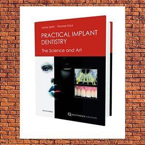 Book meta image practical implant dentistry